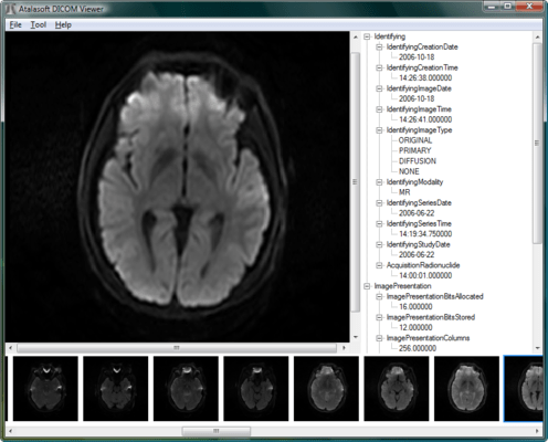 Screenshot of Atalasoft DotImage DICOM Codec Add-On