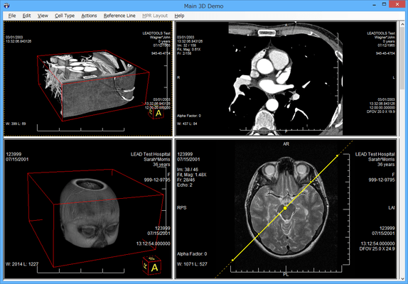 LEADTOOLS Medical Imaging(日本語版) のスクリーンショット