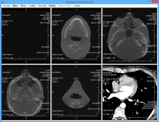 LEADTOOLS Medical Imaging Suite(日本語版) のスクリーンショット