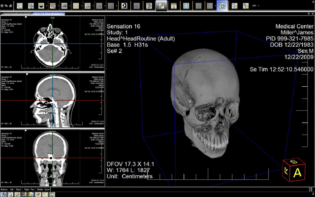 Schermata di LEADTOOLS Medical Imaging Suite