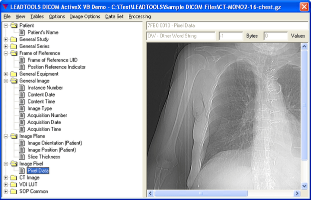 Screenshot of LEADTOOLS Medical Imaging SDK