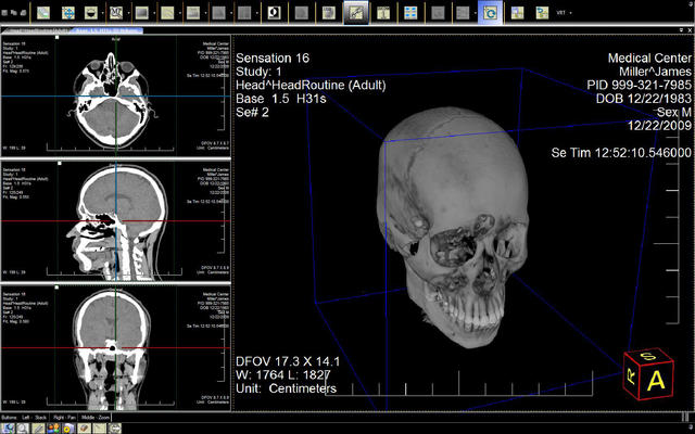 Includes advanced 3D volume rendering and reconstruction.