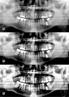 Image processing designed and optimized for medical images.