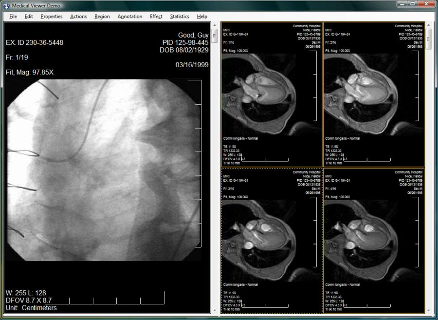 Screenshot of LEADTOOLS PACS Imaging SDK