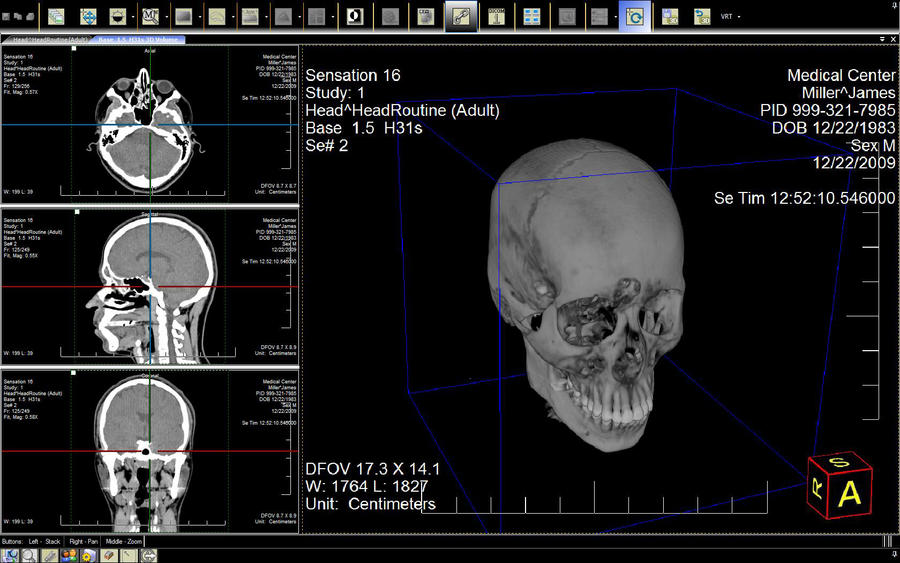 carestream 3d imaging software manual