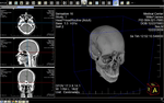 LEADTOOLS Medical Imaging Suite V20 (June 2018 release)