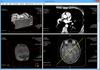 LEADTOOLS Medical Imaging(日本語版) について