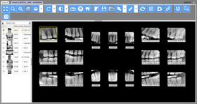 LEADTOOLS Dental Display Module v19 (Rilascio marzo 2017)
