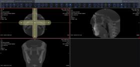 LEADTOOLS Medical Suite SDK v22